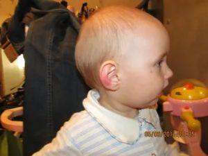 Головалый ребенок чешет, трогает уши
