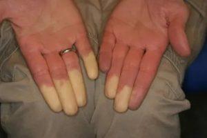 Онемение кожи после операции, это нормально?