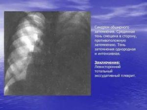 Прием бисопролола при патологии легких
