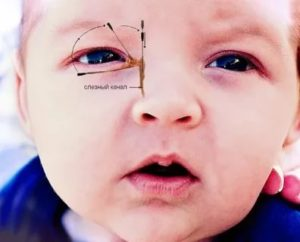Зондирование слезного канала, слезится глаз