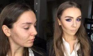 Как замаскировать шрам на лице?