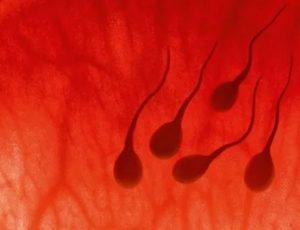 Коричневая сперма