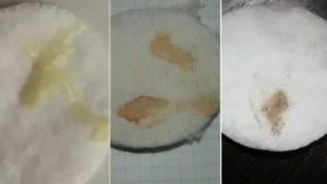 Задержка 6 дней, коричневые выделения перед месячными