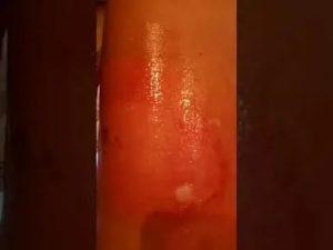 Химический ожог полового органа