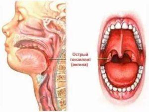 Болит горло, больно пить и зевать