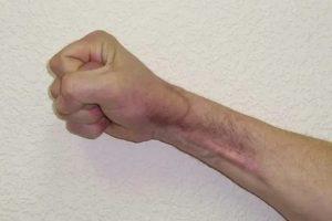 Опухоль после глубокого пореза руки