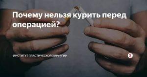 Курение перед операцией