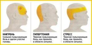 Сильно потеет левая часть головы ночью