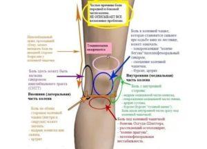 Боль под коленом при выпрямлении