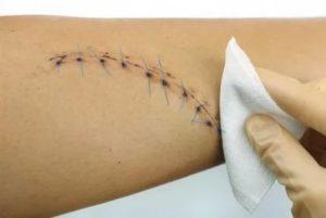 Боль после снятия швов