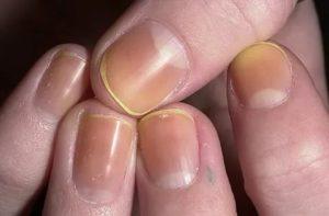 Желтое пятно на ногте