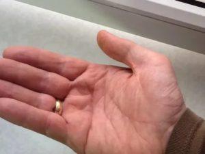 После пореза не сгибается мизинец