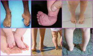 Ребенок плохо опирается на ножки, насколько это серьезно?