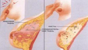 За 10 дней до месячных отекает грудь, болит, стоят импланты, что это?