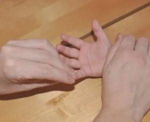 Палец не сгибается до конца, берут ли с этим в армию?