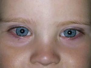 У ребенка не проходит конъюнктивит