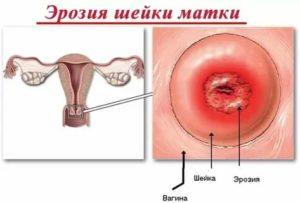 Задержка менструации и эрозия шейки матки