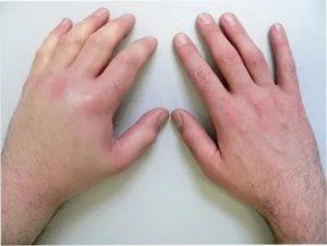 Отек подушечек пальцев рук и ног