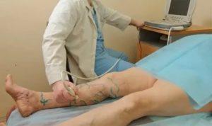Слабость после операции