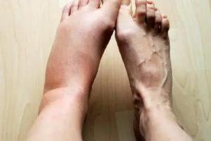 Отекла нога после тренировки
