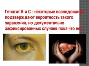 Передается ли гепатит Б через поцелуй?