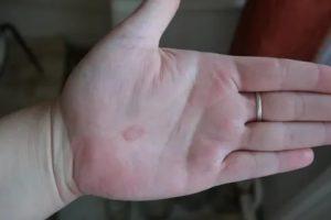 Странные пятна на руке, что это может быть?