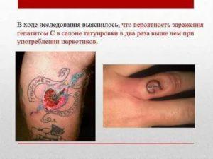 Риск заражения крови при татуировке