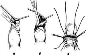 Швы после обрезания, что делать?