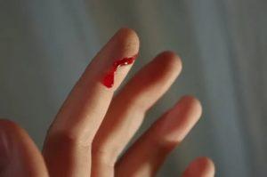Порезал палец и не больно - почему?