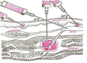 Внутривенные или внутримышечные инъекции