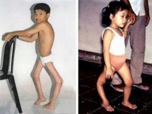 Ребенок после болезни вялый