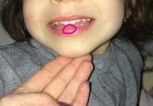 У ребенка рассечена губа, надо ли зашивать?