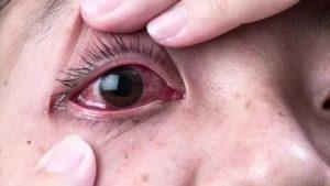 Капелька слюны попала мне в глаз, могу ли я заболеть?