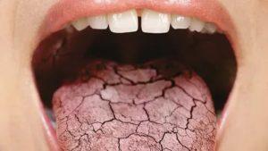 Желтый налет на языке и горле