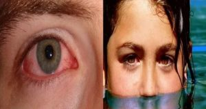 Попала в глаз хлорка