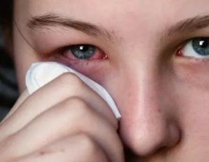 У меня не открывается глаз, весь красный и болит