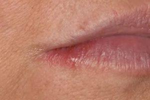 Сколько дней заразен герпес на губе?