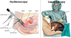 В какой день цикла делается лапароскопия?