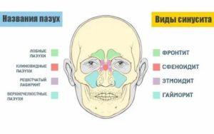 Головная боль при наклоне, заложен нос