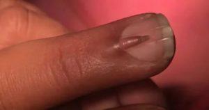 Нарастает ли мясо на пальце?
