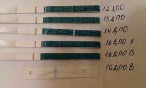 Задержка на 12 дней, тест отрицательный, температура