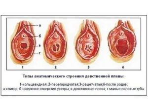Вопросы о перегородчатой девственной плеве