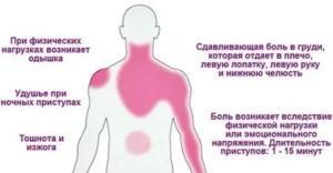 При ходьбе появляется дискомфорт в районе сердца