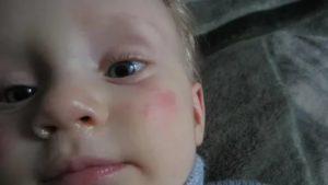 Как долго можно мазать нос малышу вифероном?