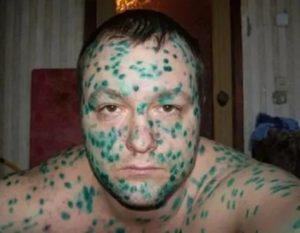 Чем можно заменить зелёнку на лице?