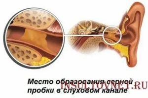 Может ли при серной пробке сильно болеть ухо?