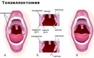 Температура после удаления миндалин