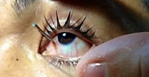 Уколол глаз иголкой, чем можно снять боль?