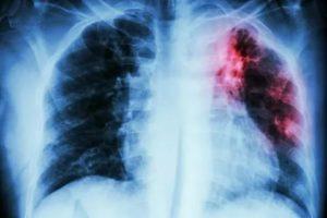 Спорт после туберкулеза