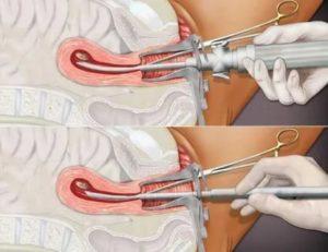 Забеременела со спиралью, аборт
